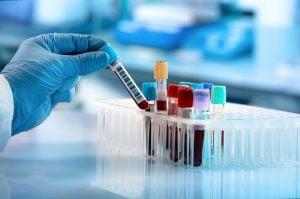 Naturheilpraxis Laucken Diagnostik Labor Untersuchung