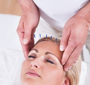 Naturheilpraxis Laucken Therapie Akupunktur