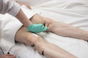 Naturheilpraxis Laucken Therapie Blutegel