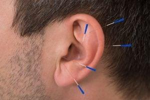 Naturheilpraxis Laucken Therapie Ohr Akupunktur